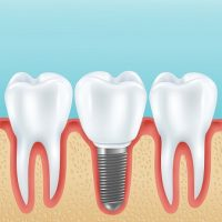 Dental prosthetics realistic vector illustration with healthy teeth and denture crown implanted with implants